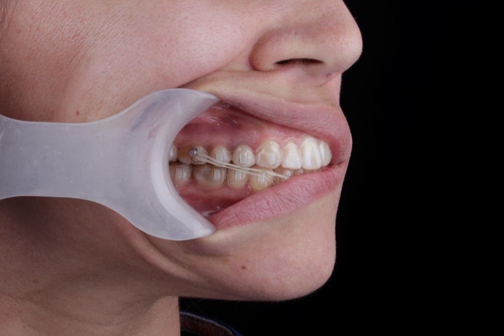 ataches en ortodoncia invisible secretaligner