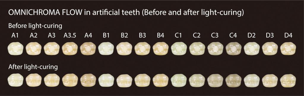 Antes y después del nuevo composite dental omnichroma flow en dientes artificiales. De venta exclusiva en proclinic.
