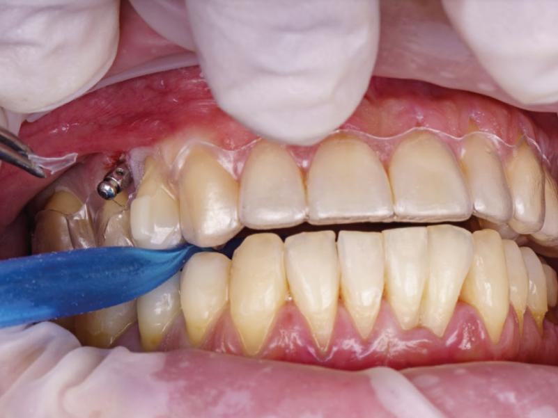 Microtornillos y ortodoncia invisible secret aligner proclinic