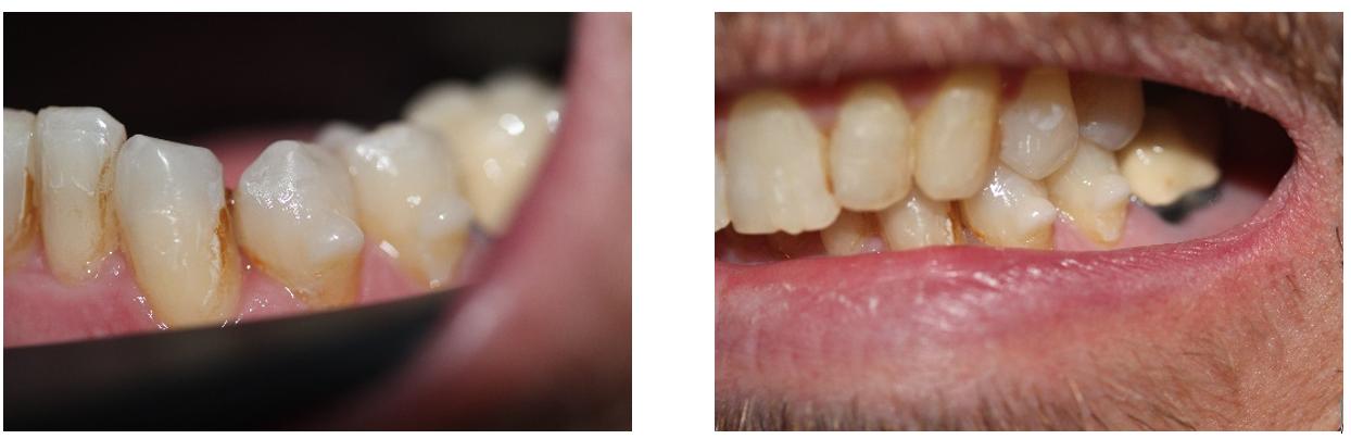 composite omnichroma estetica dental perfect a smile
